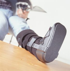 Broken foot | Orthotics in London