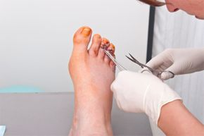 Hammer foot treatment